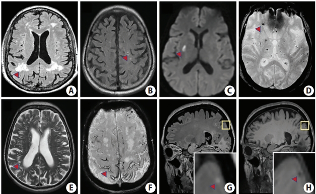 Asymptomatic Cerebral Small Vessel Disease: Insights from