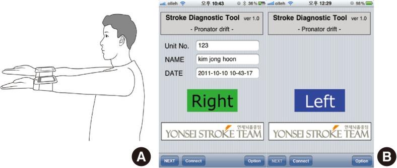 Dating stroke radiographics