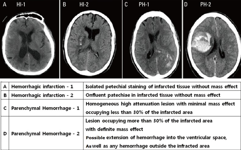 View on Ischemic Stroke